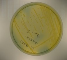 Culture of Bacteroides spp.