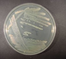 Yeasts and molds